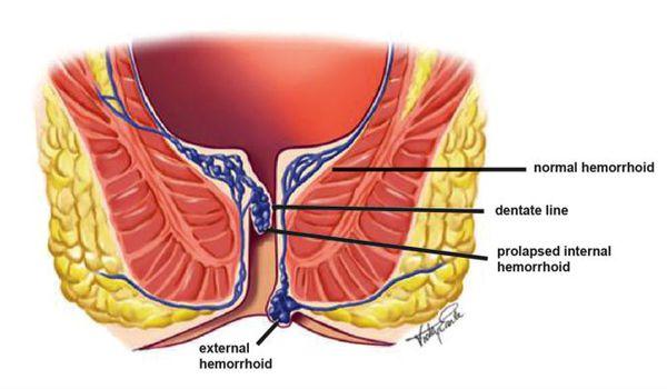 Szimpatika főoldal - A prosztatagyulladás elvesztette a libidót