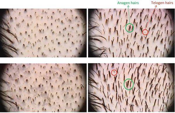 """Tra le cause più ovvie della cosiddetta """"alopezione coperta"""" può essere chiamata:"""
