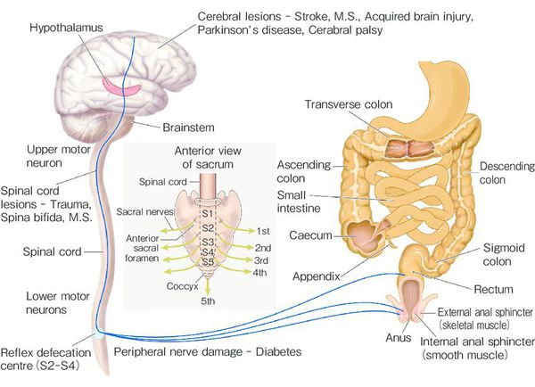 Neurogenic etiology constipation