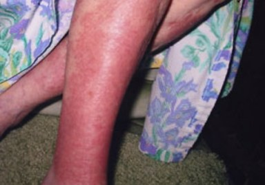 effects of chloramine on the skin image