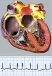 Blaufuss AF animation and ECG graphic