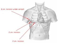 Illustration of the typical Mini-Maze incisions locations - Atrial Fibrillation -A-Fib, afib, a fib