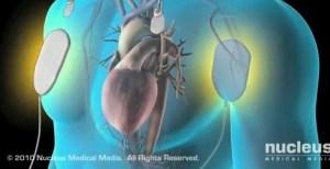 Cardioversion to Restore Normal Sinus Rhythm
