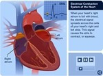 Introduction to Your Heart's Electrical System by NIH at A-Fib.com