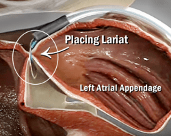 Lariat II Suture To Close The Left Atrial Appendage
