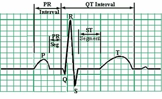 Heart-Rhythm-Monitors-EKG - 325 pix wide at 96 res