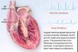 A-Fib EKG Signal video at A-Fib.com