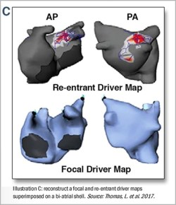 ECGI CardioInsight system: Focal and re-entrant driver maps