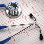 Stethoscope and EKG tracing at A-Fib.com
