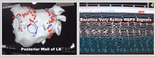 Long-Standing Persistent A-Fib: Catheter Ablation Through 3D Mapping & ECG Images Video at A-Fib.com