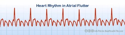does your information about atrial fibrillation apply to a flutter