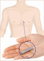 Steve Ryan: My Medtronic Reveal LINQ is inserted just under my skin near my heart: at A-Fib.com