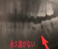 永久歯が1年以上生えてこない原因
