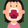 銀歯を入れてから口の中が荒れるし痛い、舌や頬が赤くなった原因は金属アレルギーを疑おう。