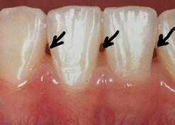 歯間ブラシで歯の間に隙間ができる理由