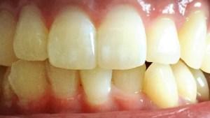 実際に美歯口30DAYSキットを試した効果