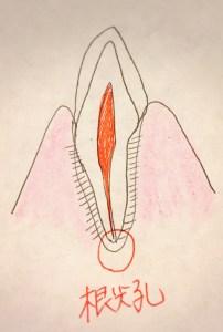 歯の根っこから膿がでる原因