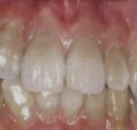 歯がグレー色になる変色