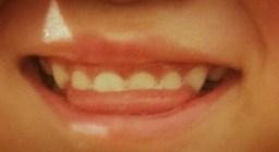 歯の間に舌を入れる癖