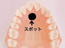 口呼吸を直す舌の正しい位置
