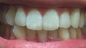 1ヶ月で歯が白くなった効果や経過