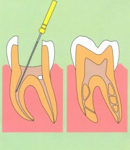 歯の神経を取る治療(根管治療)をしたのに歯が痛いのはなぜ?