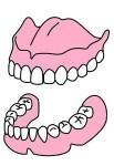入れ歯の不具合