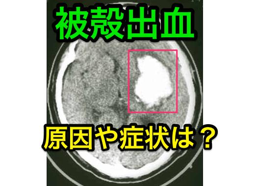 被殻出血の原因と症状