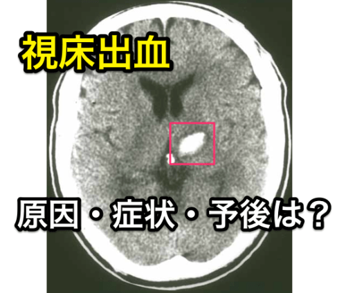視床出血症状
