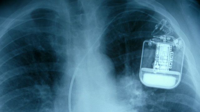 PHOTO: A pacemaker x-ray.