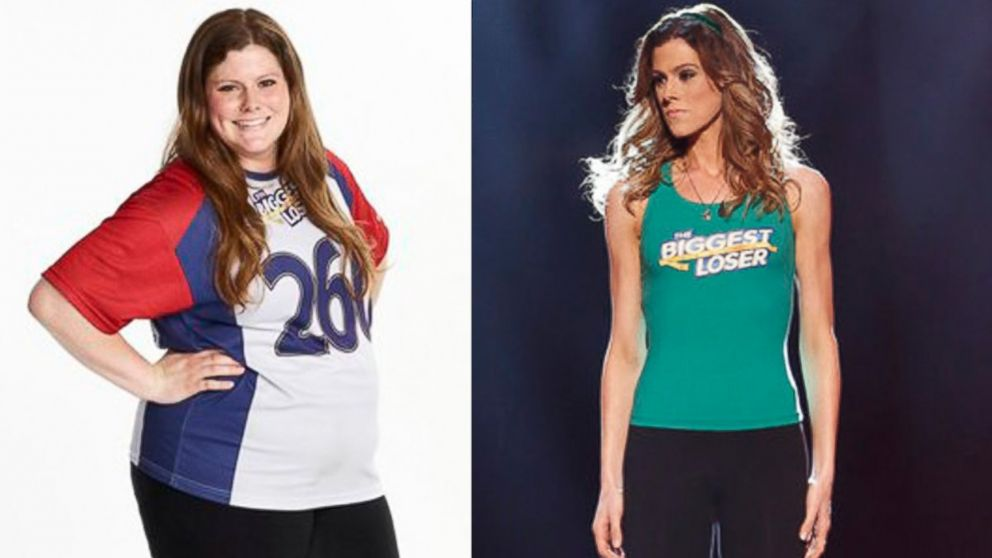 """PHOTO: Rachel Frederickson, """"The Biggest Loser"""" is a big winner after dropping 155 pounds to now weight only 105!"""