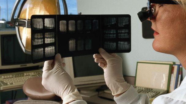 GTY dental records tk 131202 16x9 608 How Experts Identify Crash Victims Through Dental Rercords