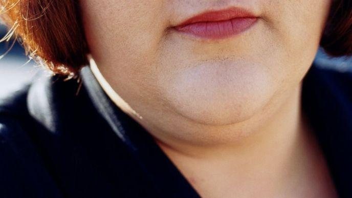 graisse sous le menton chez la femme