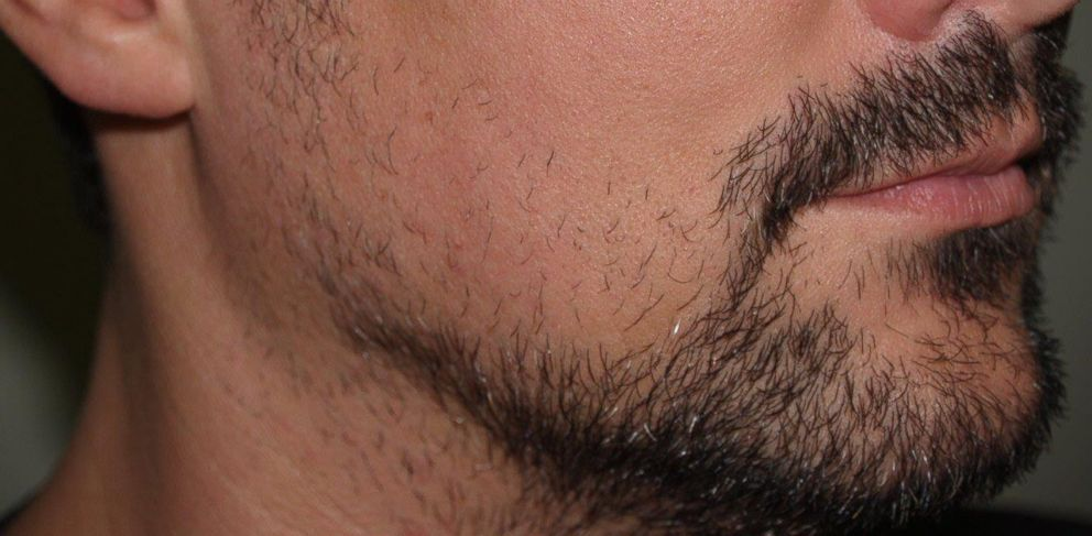 Beards And Other Hair Raising Transplants On The Rise Say