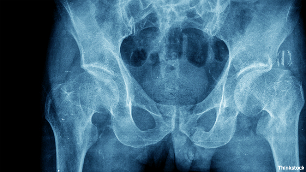 Place de huesos de la cadera