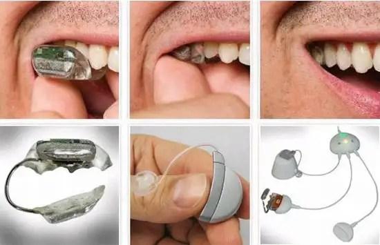 noticias Es posible escuchar através de los dientes
