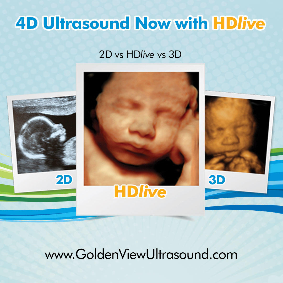 Goldenview Ultrasound 3d 4d Hdlive San Antonio Coupons