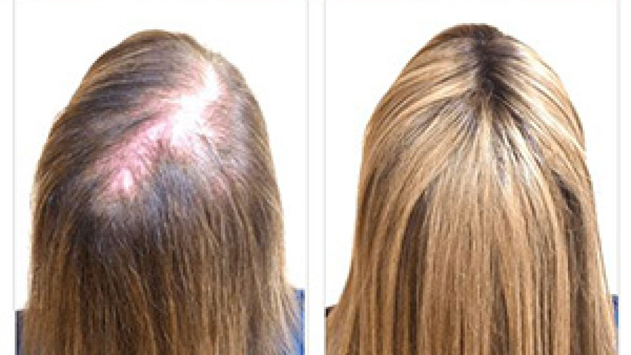 HGH For Hair Growth- Is It Actually Possible?