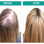HGH and Hair Growth -Does HGH Works for Hair Growth?