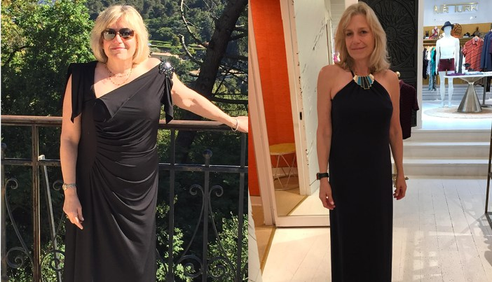 Diane Before & After Using GenF20 Plus Pics