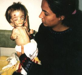 https://i0.wp.com/a33.idata.over-blog.com/284x246/1/07/22/91/Anti-War-Protests/Anti-war/iraqi-child-victim-of-depleted-uranium.jpg