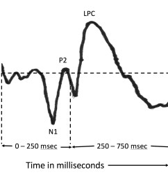 figure 1 an example of how a typical auditory event related potential aerp [ 1800 x 1280 Pixel ]
