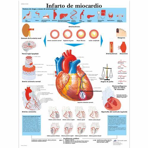Infarto De Miocardio  4006842  3b Scientific  Vr3342uu