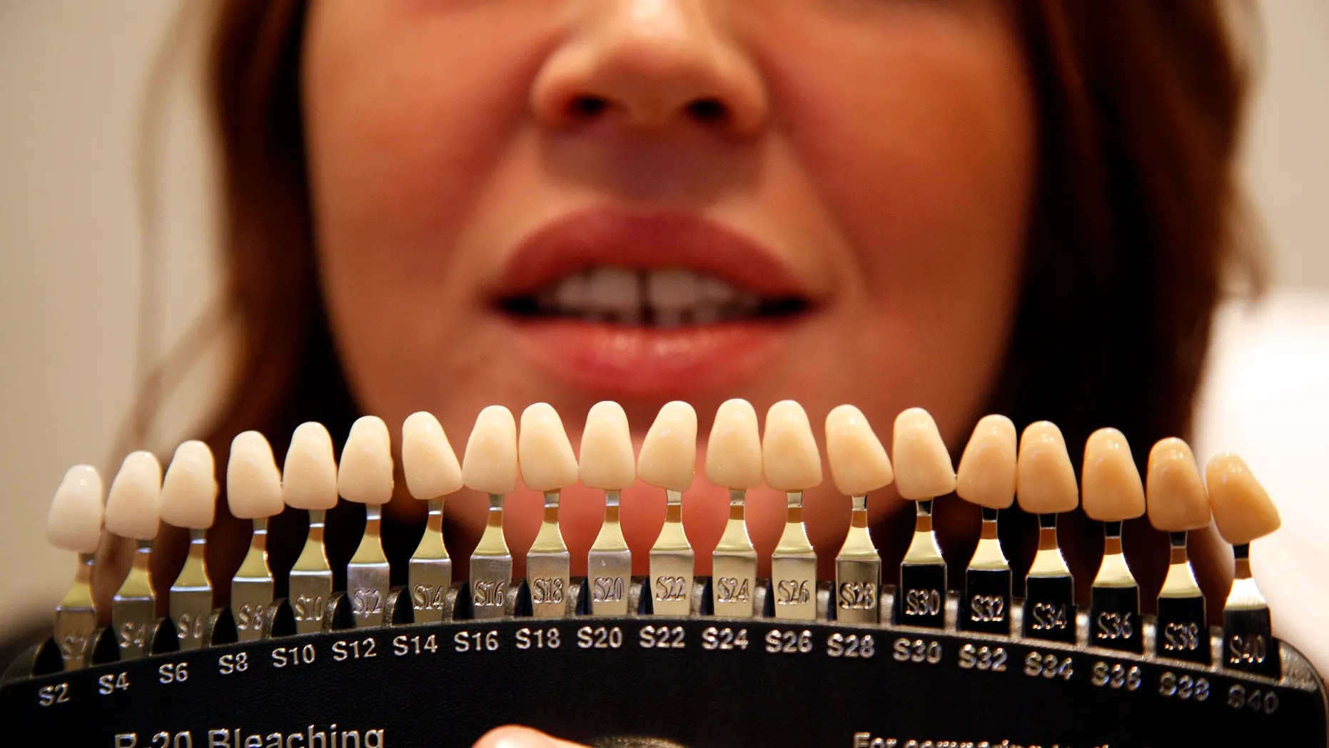 tooth colour chart is used to evaluate the current before customer undergoes also dental regulators work shut down teeth whitening businesses fox rh foxnews