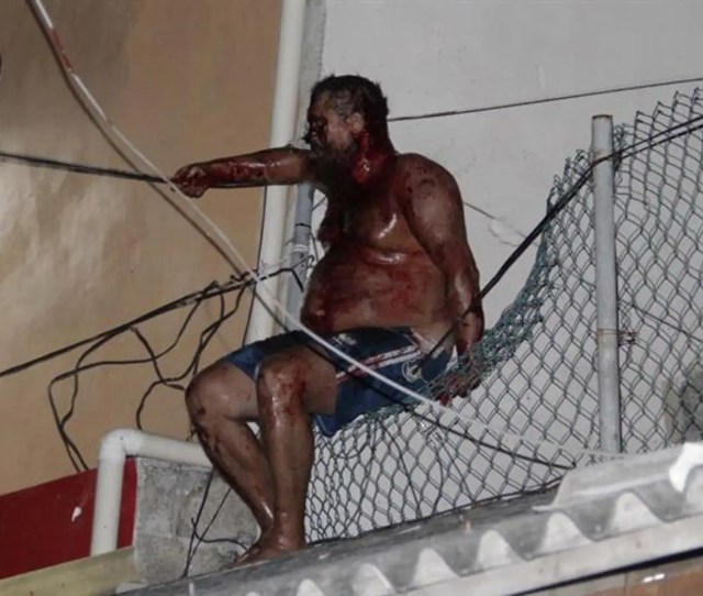 Aleksey Makeev Sits On A Fence On Top Of A Building After Being Beaten By An
