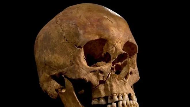 king-richard-skull