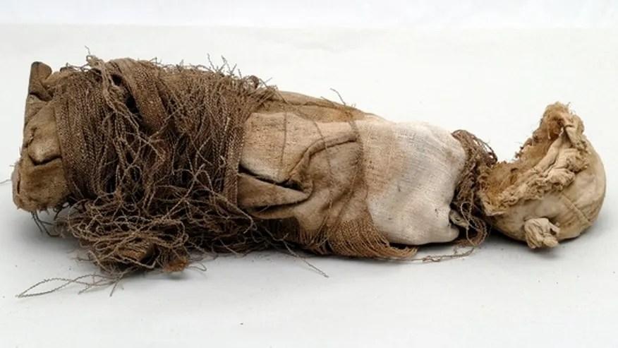 mummified-fetus