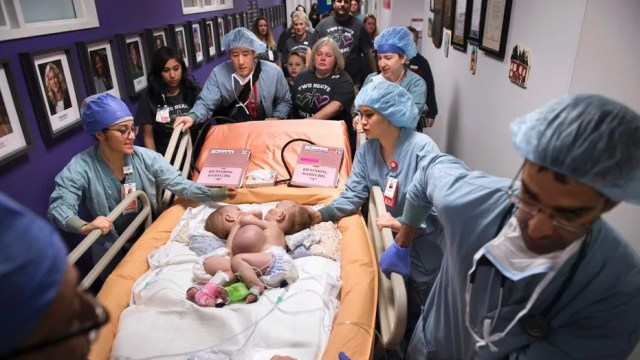 Hospital personnel wheel conjoined twins, Anna and Hope Richards, to surgery to separate the girls on Jan. 13. The girls who were born in 2016 were conjoined at the chest and abdomen.