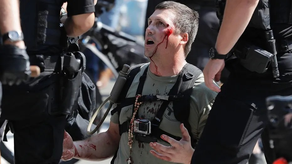 A man who was protesting with Patriot Prayer and other groups supporting gun rights is treated for an injury during a rally and counter-protest in Seattle, Aug. 18, 2018.