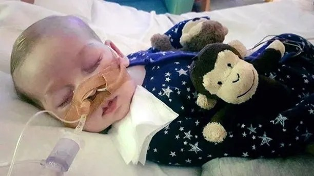 This is an undated photo of sick baby Charlie Gard provided by his family, taken at Great Ormond Street Hospital in London.  The parents of a critically ill infant Monday July 24, 2017 withdrew their court fight seeking permission to take the child to the United States for medical treatment. Chris Gard and Connie Yates wept as their attorney revealed the results of brain scans. The 11-month-old has a rare genetic condition, and his parents fought hard to receive an experimental treatment. Doctors said it wouldn't help and contended Charlie should be allowed to die peacefully. (Family of Charlie Gard via AP)